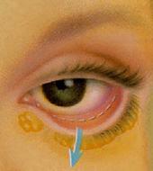 Блефаропластика - способ изменить форму глаз