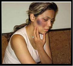 Иранская христианка, избитая полицией