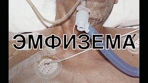 Это и подобные ему изображения появятся на сигаретных пачках, продающихся в России, уже через год.