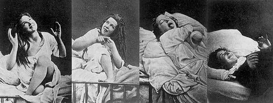 Women with hysteria under the effects of hypnosis
