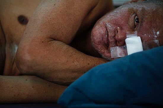 Пациент лежит в хосписе для тех, кто умирает от СПИДа