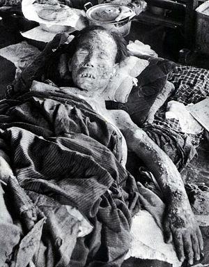 Жертва атомной бомбардировки