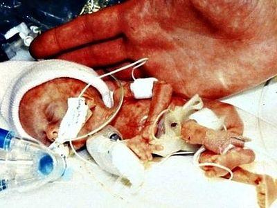 Обама намерен наложить вето на законопроект, защищающий младенцев, выживших после аборта