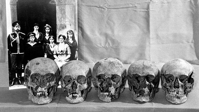 Предполагаемые черепа членов царской семьи, 1993 год. Фото: Анатолий Семехин/ТАСС