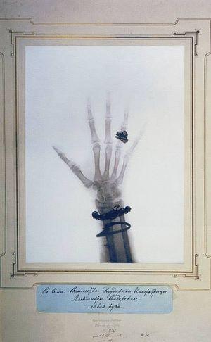 Рентгеновский снимок левой руки Императрицы Александры Феодоровны
